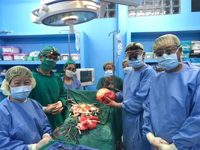 Drs Sim Chiang Khi, Tan Chong Tien, Lo Wai Kit, Seow Lay Tin, and Matron Nancy Low removing a giant kidney tumor